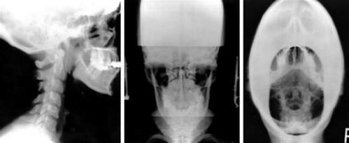 _wsb_499x204_Atlas+X-rays